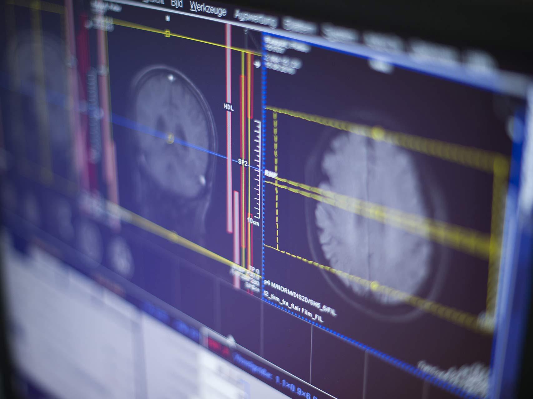Kernspinzentrum - Hamburg Eppendorf - CT-gesteuerte Schmerztherapie (PRT)